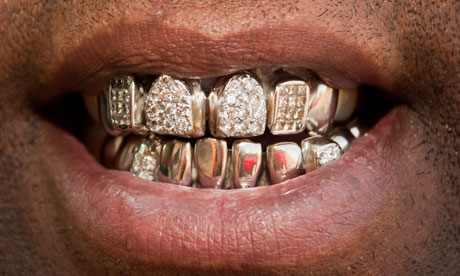 Ways to blow your extra cash suggestion 2. Gold & diamond grills, homes.